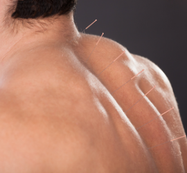Acupuncture - Dry needling